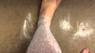 Psoriasis(update) vs Foot File