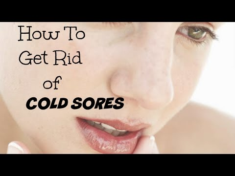 how-to-get-rid-of-cold-sores