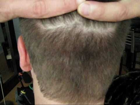 Video 9 Marks Hair Transplant Scar In The Back 7 5 Months After