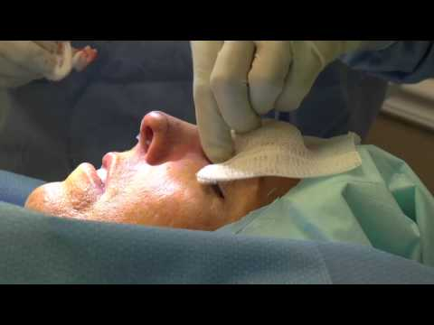 RHINOPLASTY UNDER LOCAL ANESTHESIA - DR. TANVEER JANJUA - NEW JERSEY