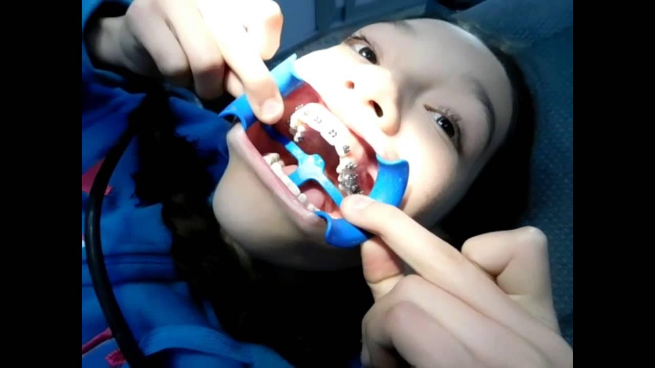 Vamos al dentista como me ponen los brackets youtube for Como se cocinan los percebes