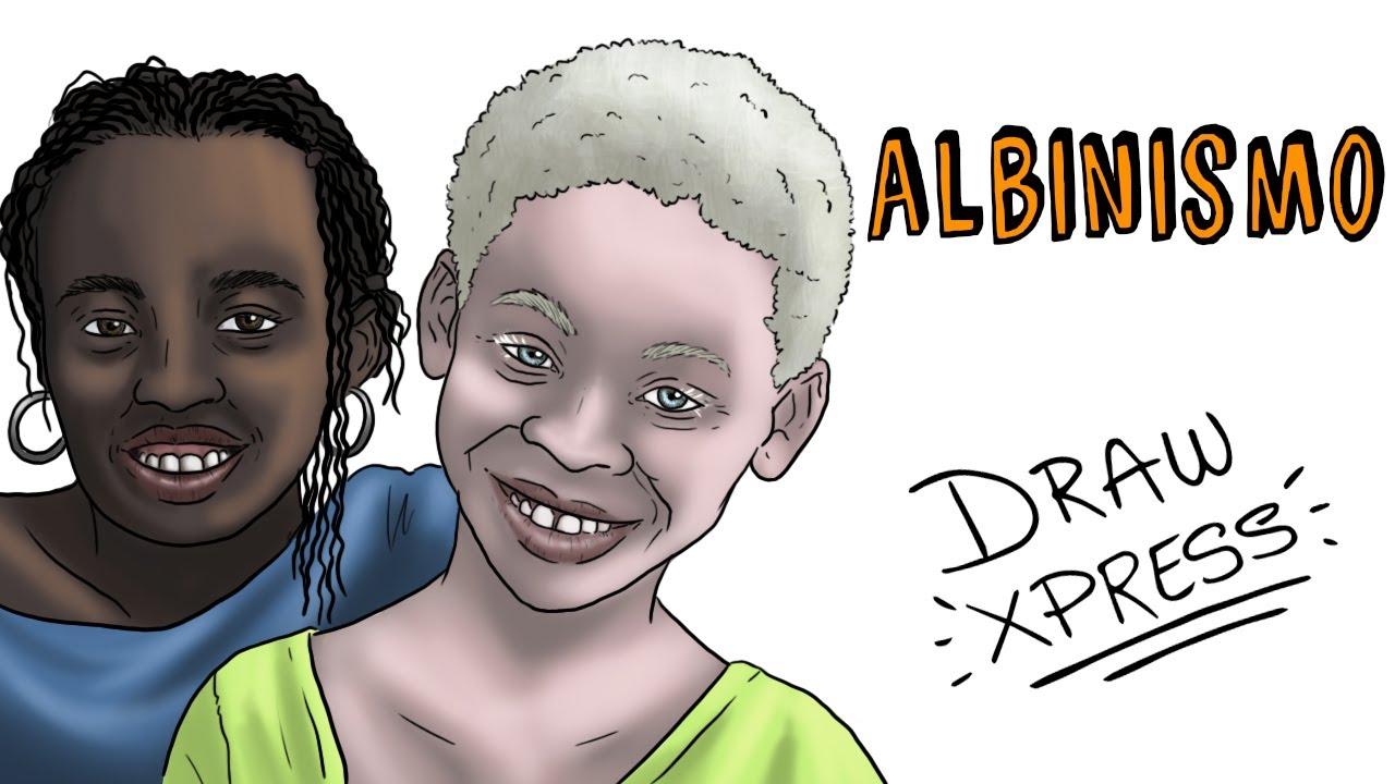 ALBINISMO | Draw My Life