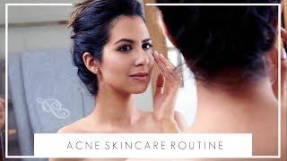 HOW I DEAL WITH ACNE & PIGMENTATION   Evening Skincare Routine   JASMINA PURI
