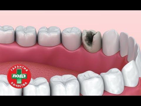 Болят ли зубы при кариесе