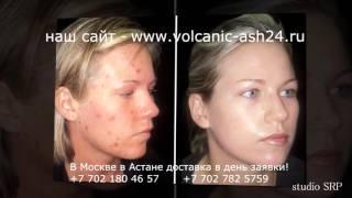 видео Аллергическая сыпь