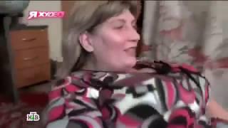 Я худею! на НТВ. Операция по шунтированию желудка (4 сезон 16 выпуск)