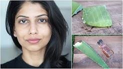 hqdefault - Aloe Vera Oily Skin Acne