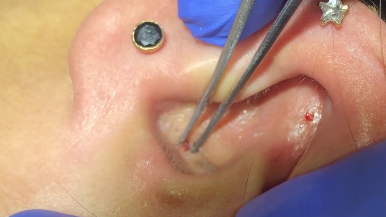 DEEP EAR BLACKHEADS REMOVAL by Dr Lalit Kasana (22 Aug 2019)