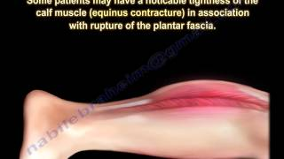 Plantar Fascia Rupture - Everything You Need To Know - Dr. Nabil Ebraheim