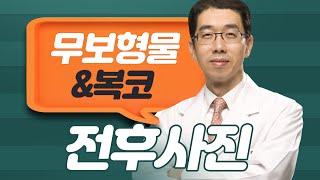 [전후사진 2탄] 무보형물코수술&복코수술 (찡긋!)