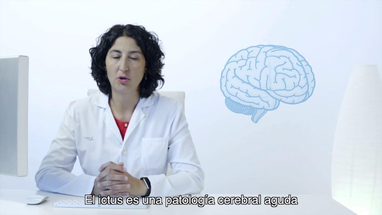 sintomas de ictus mujer