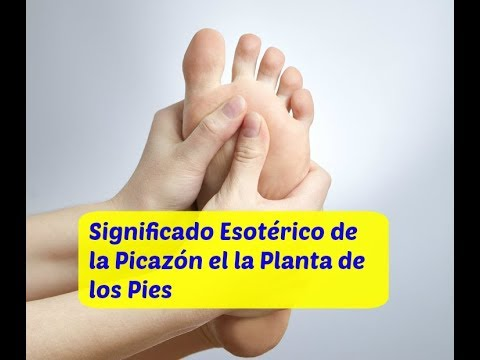 Picor en la planta de los pies y manos