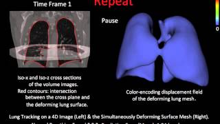 Modeling/Tracking of Lung Deformation from Sequential CT Images