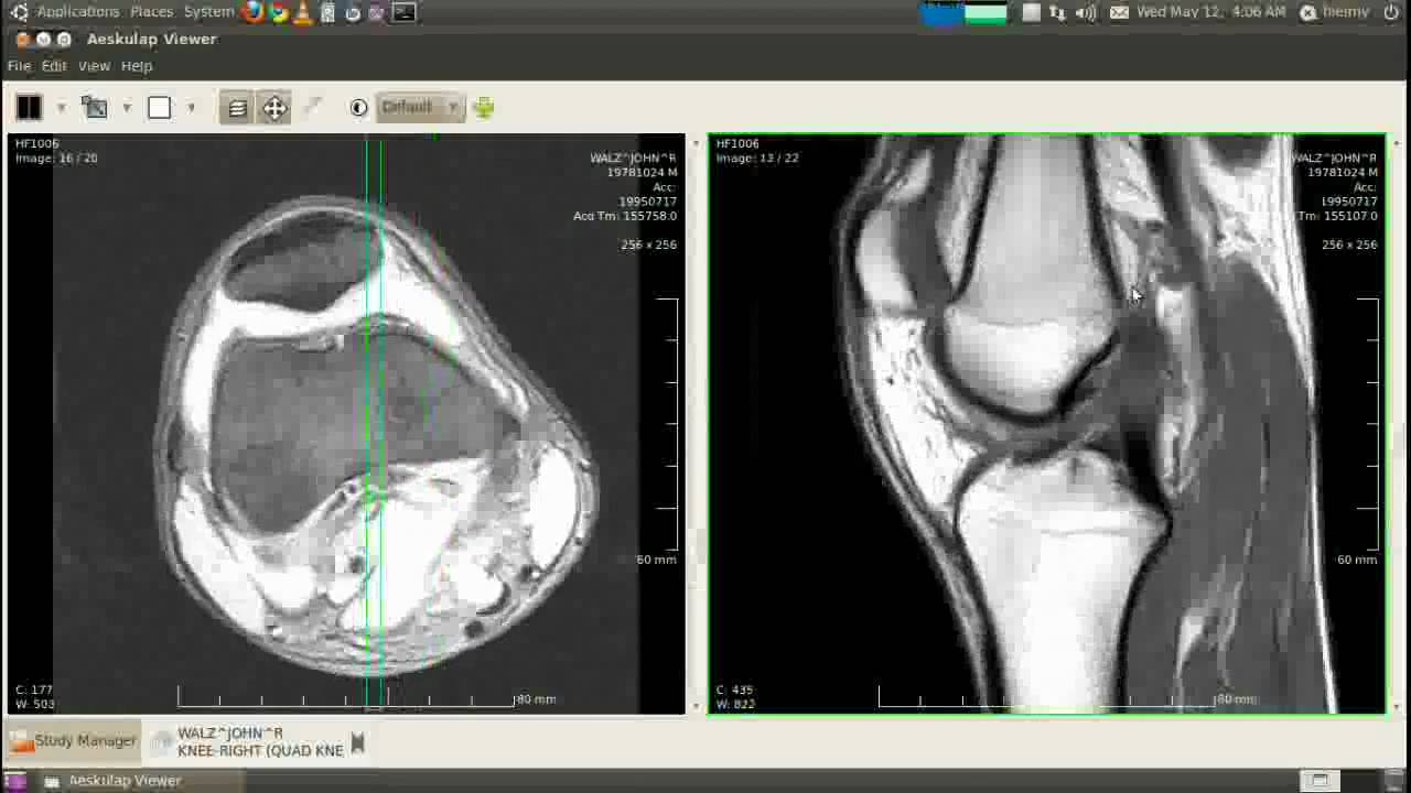 16 Best Free Linux Medical Imaging Software - LinuxLinks