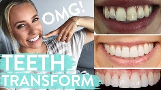 TEETH TRANSFORMATION | Porcelain Veneers | Before & After + Review