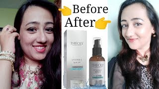 Skin Whitening Anti Aging Serum | Theoly Vitamin C Serum For Glowing & Youthful Skin (100%Result)