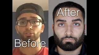 NoFap   2+ Year Update   The Truth