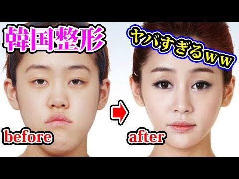 韓国の激安整形で顔を変えた人たちがヤバイwww【都市伝説】【坂口杏里】
