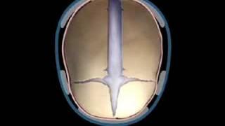 A Case of Nonsyndromal Craniosynostosis.