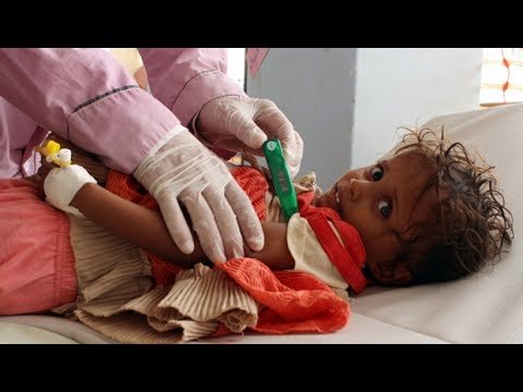 Yemen Needs Aid, But US Aids Saudi-Led War