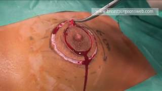 Repeat youtube video Round-Block for Giant fibroadenoma of the breast