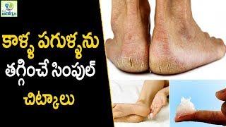 Home Remedies for Cracked Heels - Health Tips In Telugu || Mana Arogyam