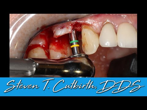Fractured Tooth Extraction, Bone Graft, Implant - Dental Minute With Steven T. Cutbirth, DDS