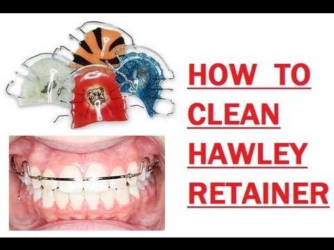 {#176} HOW I CLEAN MY HAWLEY RETAINER