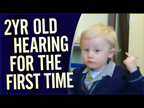 Amazing Video - 2 year old hears for the first time during Cochlear Implant activation Unedited