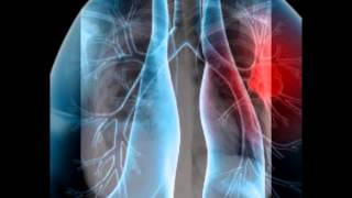 Mesothelioma attorney houston