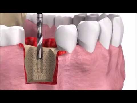 Можно ли ставить имплантант, если зуба не было 20 лет?