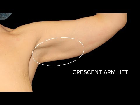 MINI ARM LIFT (Crescent Brachiopalsty)