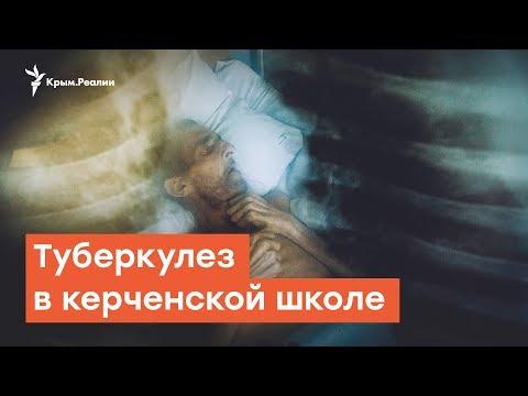 Туберкулез в керченской школе  | Дневное шоу на Радио Крым.Реалии