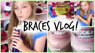 vlog braces what the orthodontist gave me more