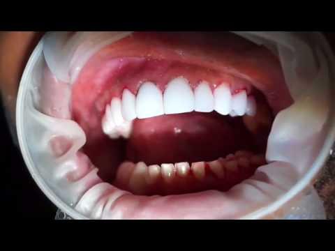 Porcelain Veneers Cementation at Bedford Dental Group