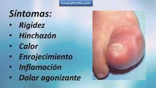Derecho pie hinchazon del dedo gordo del