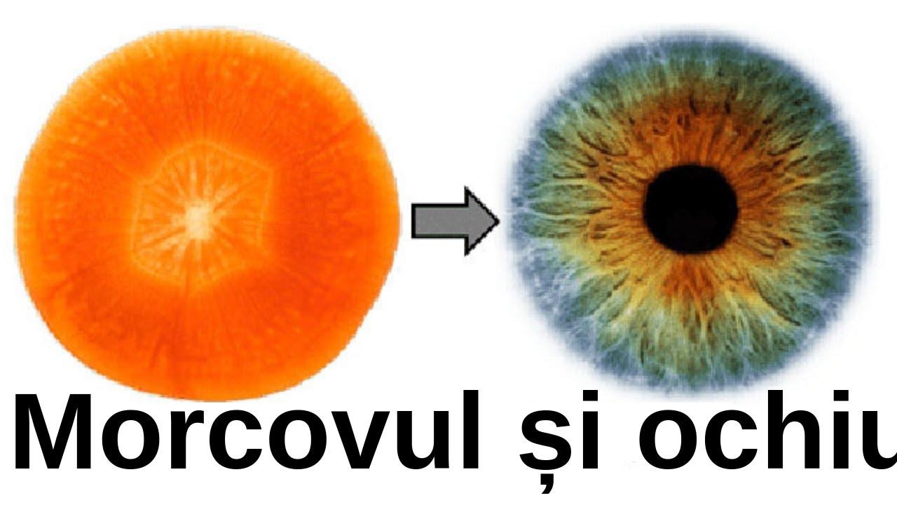 oameni care și-au vindecat vederea tratament cu vedere scăzută