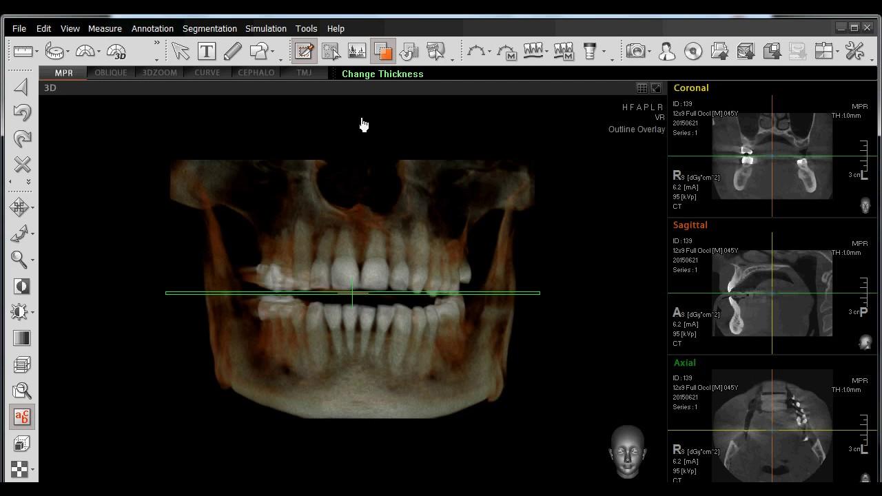 EZ3D PLUS 08 Funcion de Recortar Anatomia 3D - YouTube
