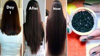 कलोंजी और निम्बू में ये चीज मिला दी, बाल ऐसे बढ़ने लगे जैसे बांस का पेड़ बढ़ता है
