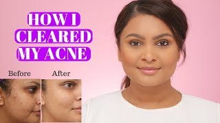 HOW I CLEARED MY ACNE | PROACTIV MD REVIEW