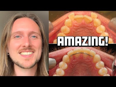 INVISALIGN: My Incredible Clinical Photos, Before And After