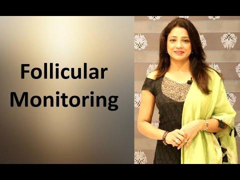 infertility-में-follicular-monitoring-क्यों-करते-हैं?