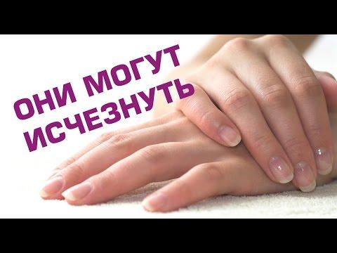 У основания ногтя