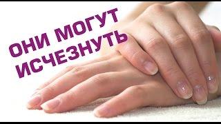 Фото Белые лунки у основания ногтя! Не пропусти тревожный симптом! Полезные советы.
