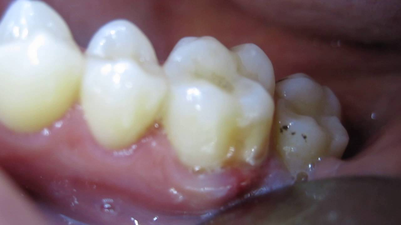 Disgusting Pus-Filled Tooth Gum Boil (Periodontal Abscess)