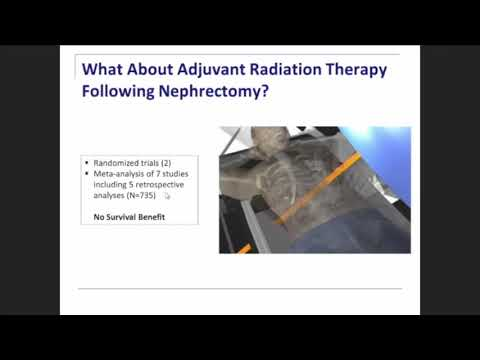 New Developments in Adjuvant Therapy for Renal Cell Carcinoma Scott S. Tykodi, M.D., Ph.D.