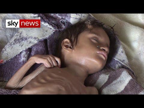 'Millions of children could die' in Yemen