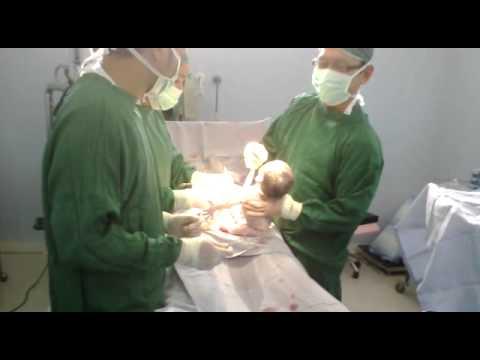 operasi caesar