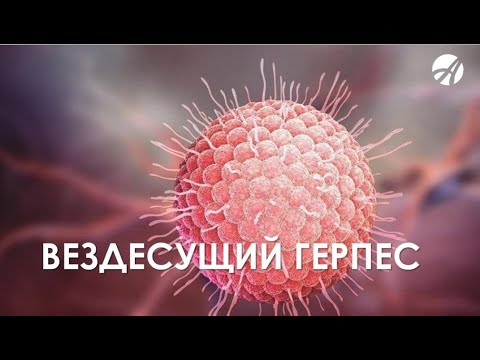 Герпес.  Вирус герпеса Как лечить герпес. Антивирусная программа Артлайф.