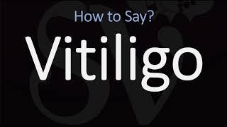 Hi teman-teman Kali ini aku mau share perkembangan vitiligo papah aku. Yang Sampai saat ini sudah ma.